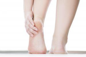 Smärtande häl med uttrampad hälkudde